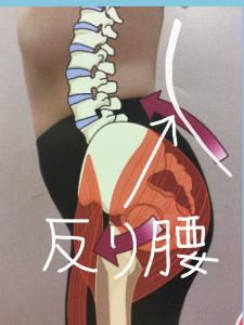 骨盤が前に傾く反り腰
