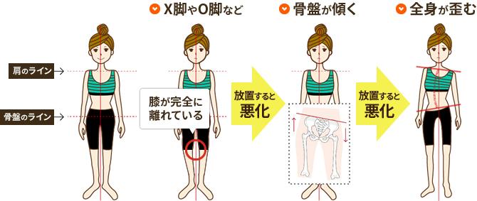 膝の痛みによる体のバランスについての説明図